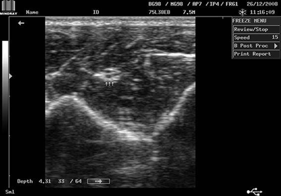 Mindray DP-2200Plus Result Median Nerve