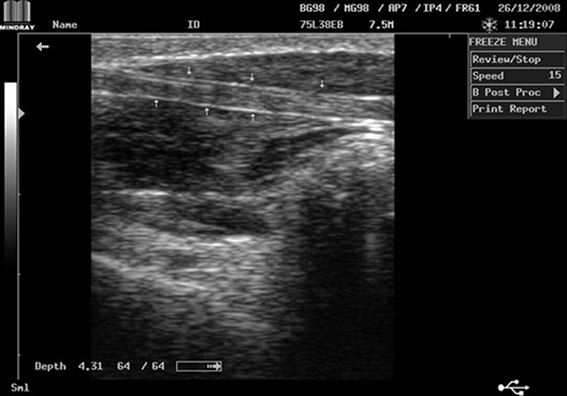 Mindray DP-2200Plus Result Tendon